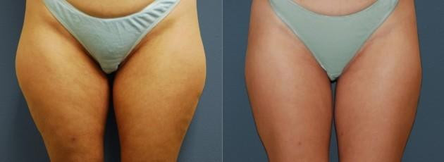 Liposuction New Orleans