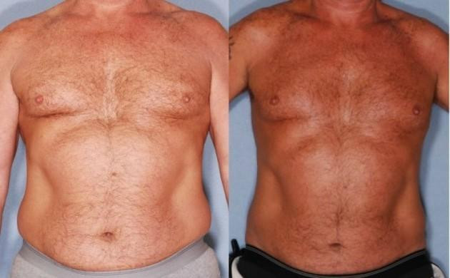 Liposuction Hammond LA