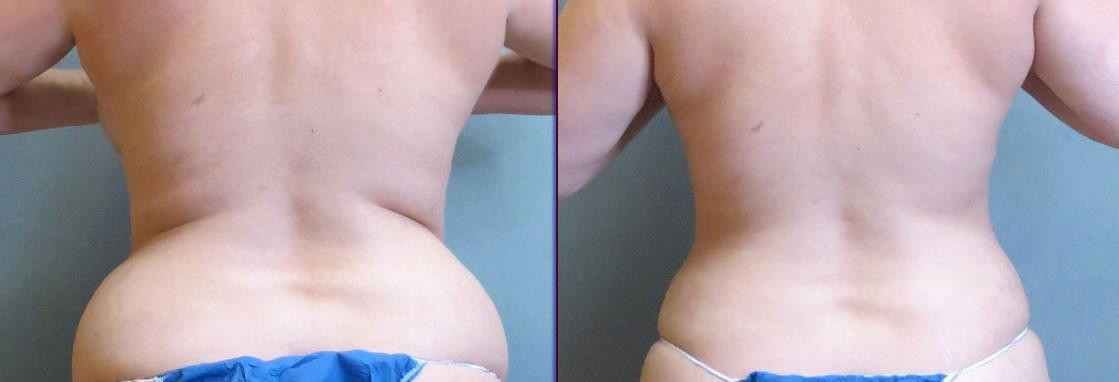 Smartlipo New Orleans