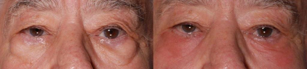 CO2 Laser Facial Resurfacing