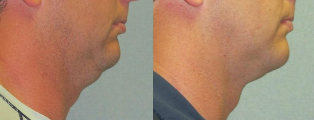 Laser Lipo Neck Lift Double Chin Treatment Qna