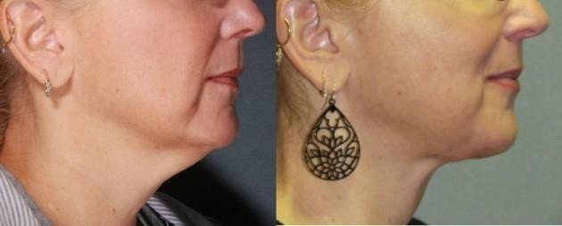 Before and After Laser Lipo Neck Lift* - Laser Lipo Neck Lift