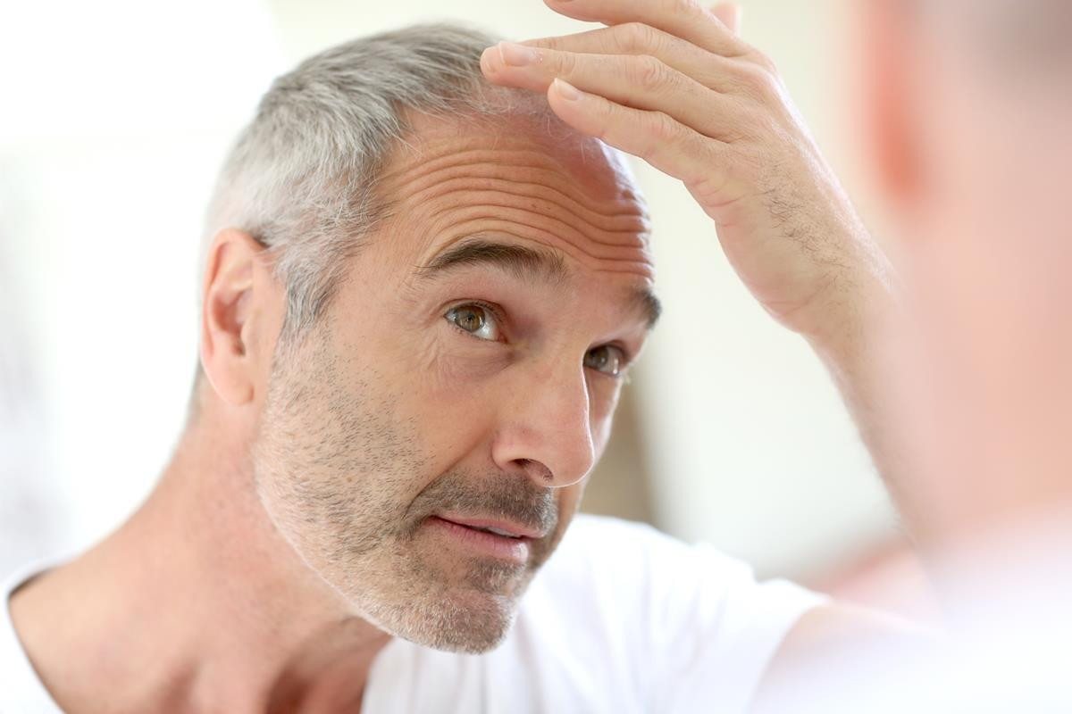 Hair Restoration New Orleans