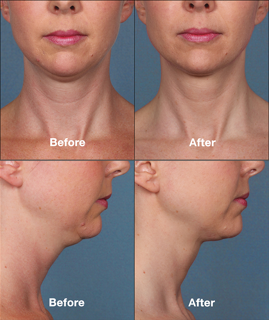 Kybella Double Chin Treatment New Orleans LA