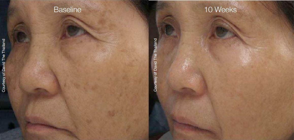 SilkPeel Dermalinfusion New Orleans