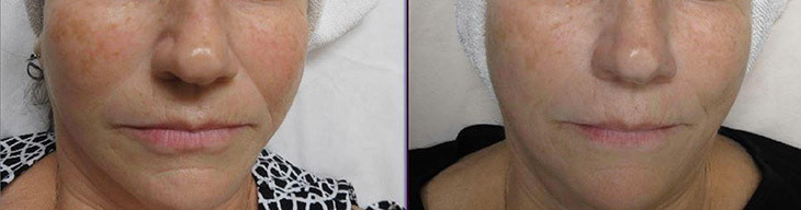 Micro-needling Collagen Induction