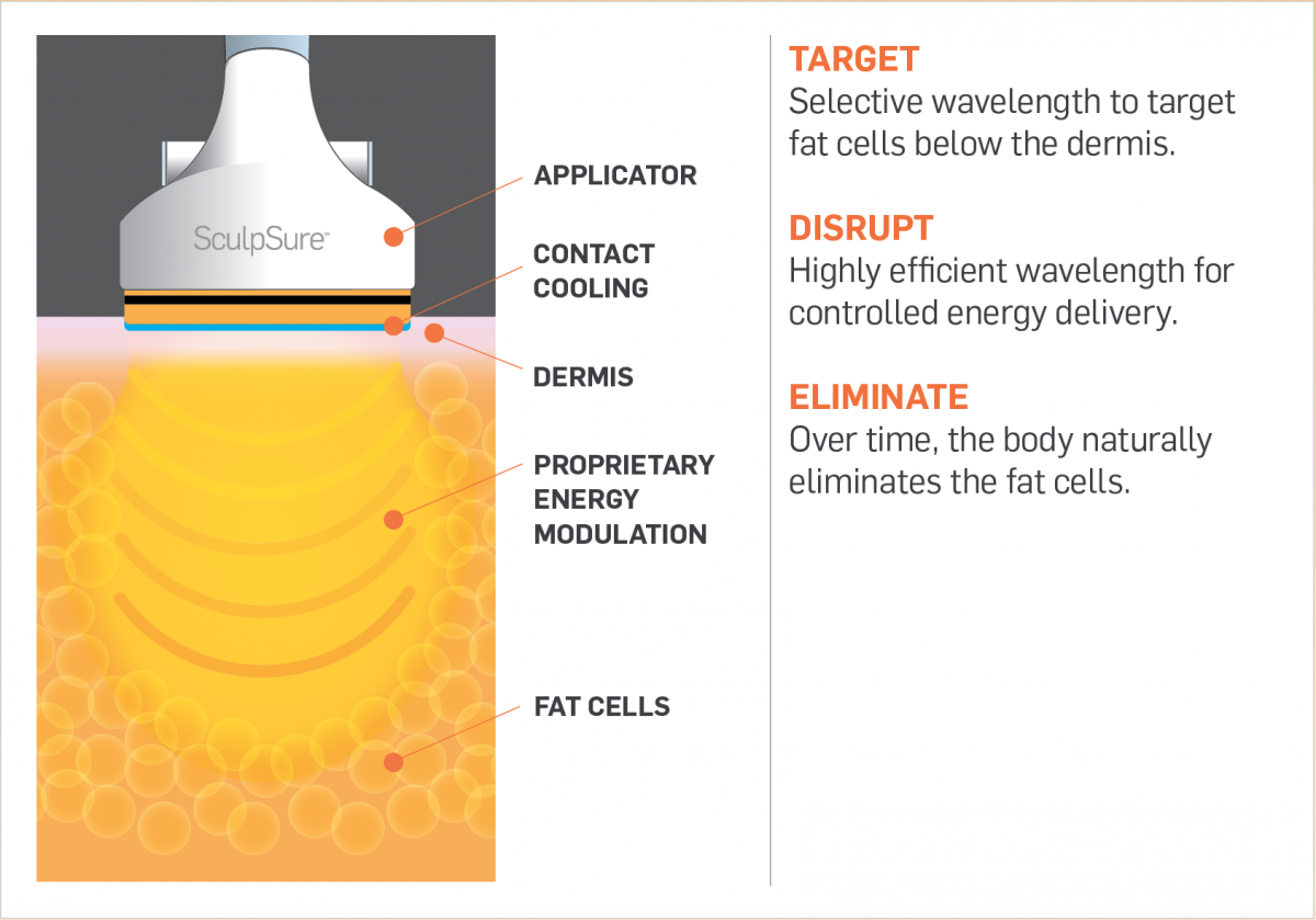How Does it Work? - SculpSure Information