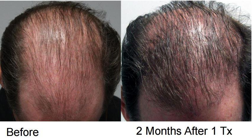 Before and After PRP Therapy * - PRP Therapy