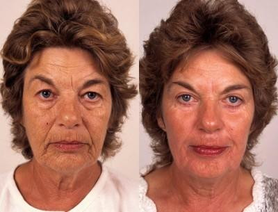 Before and After Chemical Peels * - Chemical Peels