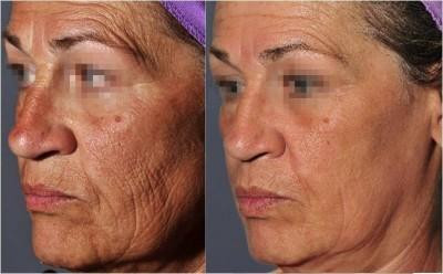 Before and After Pearl Fractional Laser Resurfacing * - Pearl Fractional Laser Resurfacing