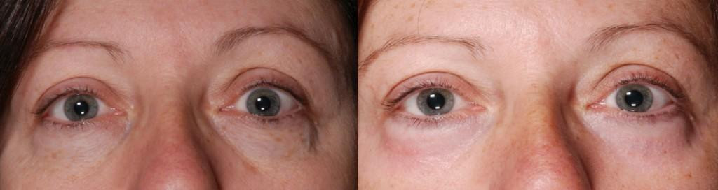 Before and After CO2 Laser Resurfacing * - CO2 Laser Resurfacing