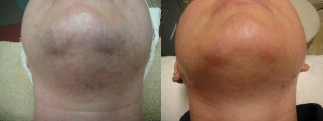 Laser Hair Treatment Chin