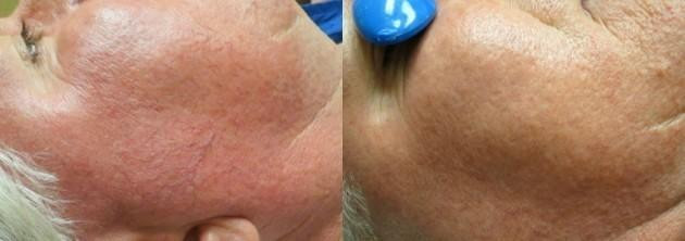 Vein reduction by nose area