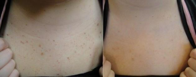 Before and After LimeLight IPL * - Limelight IPL Treatment