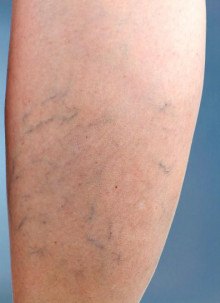 Varicose and spider vein treatment