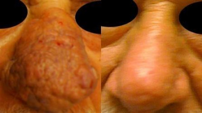Before and After Dermatological Surgery* - Dermatological Surgery
