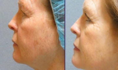 Laser Facial Resurfacing