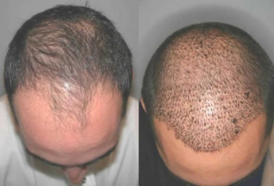 Hair Restoration Transplant Hammond LA