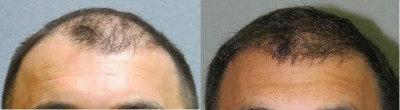 Hair Restoration Transplant Covington LA