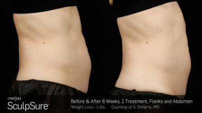 SculpSure Baton Rouge