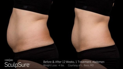 SculpSure Belly Fat Treatment Baton Rouge