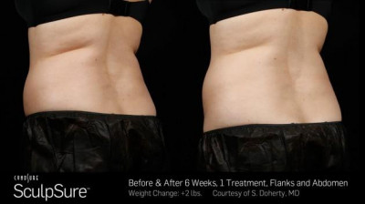 SculpSure Belly Fat Treatment Covington LA