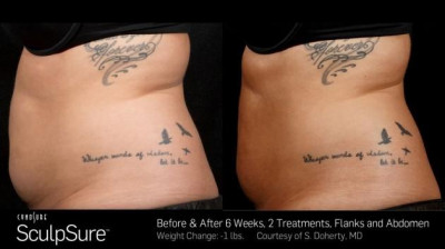 SculpSure Belly Fat Treatment Hammond LA