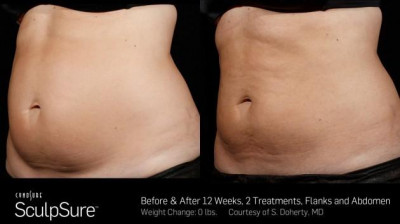 SculpSure Belly Fat Treatment Ponchatoula LA