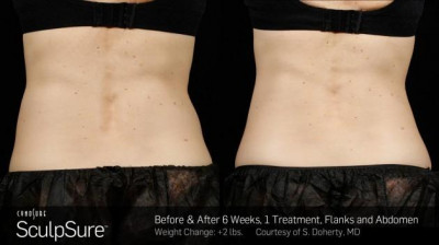 SculpSure Belly Fat Treatment New Orleans