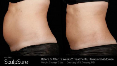 SculpSure Belly Fat Treatment