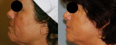 Pearl Fractional Laser Resurfacing